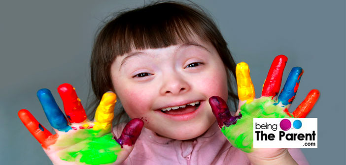 Down-syndrome-girl
