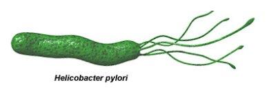 wpid-heliobacter_pylori